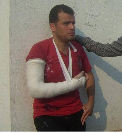 بالصور سيارة بيطري المنصورة الجامعه الجرحى الحادثة