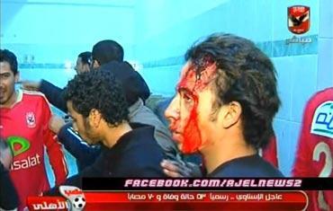 ردود الأفعال أحداث مباراة المصري