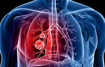علامات تحذيرية بالوجه تكشف الإصابة بسرطان الرئة