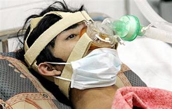 تسجيل أول إصابة بنوع نادر من إنفلونزا الخنازير بين البشر في كندا