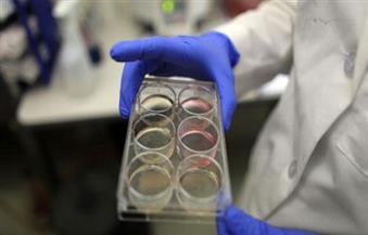 دراسة: بكتيريا المعدة وراء التهاب المفاصل والعمود الفقري