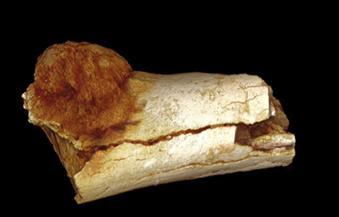 بالفيديو ..اكتشاف أقدم ورم سرطاني فى عظام أشباه للبشر منذ مليوني عام