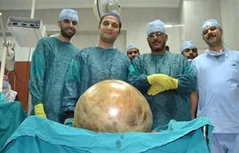 استئصال ورم سرطاني يزن 38 كيلو من بطن مسنة في معهد الأورام بجامعة أسيوط