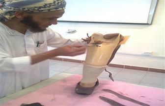 أبوزيد: تصنيع 69 طرفًا صناعيًا وتوزيعها بالمجان على مصابي الألغام بمطروح