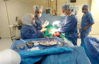 جامعة أسيوط تُعلن نجاح حالتين جديدتين لزراعة الكبد بمستشفى الراجحي الجامعي