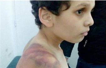 """النيابة تحيل الزوجة المتهمة بتعذيب الطفل """"آسر"""" للمحاكمة"""
