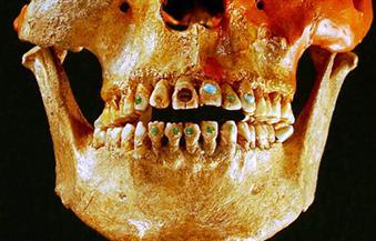 علماء آثار يعثرون على أقدم حشوات أسنان في العالم بإيطاليا