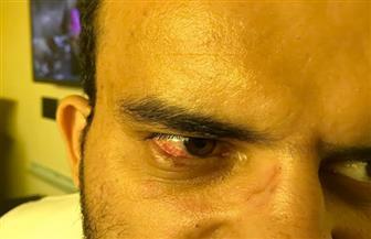 أمين شرطة يتعدى على طبيب بمستشفى شبين الكوم التعليمي