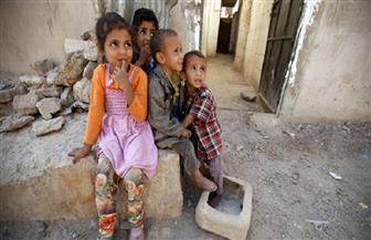 الأمم المتحدة: سوء تغذية الأطفال يرتفع لمستويات جديدة باليمن