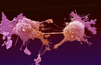10 جراحات استئصال أورام سرطانية خلال شهر أكتوبر داخل مستشفى مرسى مطروح