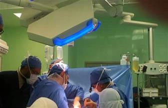 إجراء ٣ عمليات ناجحة لزراعة كبد بمستشفى الراجحى بجامعة أسيوط |صور