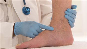 علماء بريطانيون: طول القامة يزيد احتمالات الإصابة بدوالي الأوردة