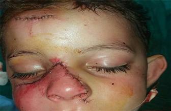 فريق طبي بمستشفي المنصورة ينقذ طفلا 3 سنوات بجراحة تجميل
