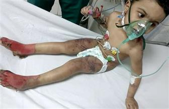 حبس الأم المتهمة بتعذيب طفلها وحرقه بكفرالشيخ وزوجها 4 أيام