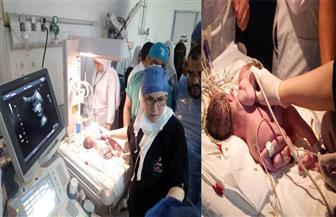 إجراء عملية لفصل توأم ملتصق من الصدر والبطن بأطفال المنصورة.. الثلاثاء