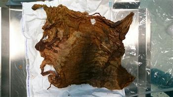 مستشفى العلمين بمطروح: استخراج فوطة طبية من بطن سيدة بعد 4 سنوات من جراحة قيصرية| صور