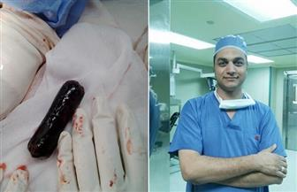 عجائب وغرائب عمليات قصر العيني.. موبايل وحشيش وترامادول داخل بطن الإنسان | صور