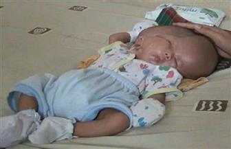 ولادة طفل بوجهين في إندونيسيا!