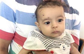 نجاح جراحة تجميل عيون لرضيعة 6 أشهر بمستشفى رأس سدر المركزي   صور