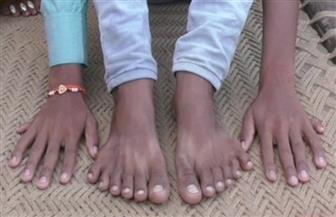 أسرته تطمع في الثراء.. طفل هندى  بـ 24 إصبعا قربانا للآلهة !