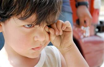 بعد تكرار الحوادث.. فرك طفلك عينيه يهدد بكارثة | صور