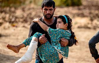 أطفال بلا مأوي ووجوه ملطخة بالدماء..هذا ما جنته القوات التركية فى سوريا| صور