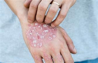 طريقة جديدة لتشخيص فطريات الجلد