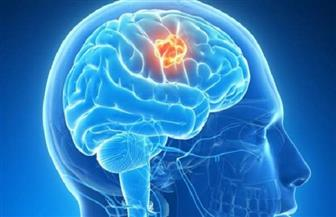 """الـ""""ديجا فو"""".. خلل دماغي يمزج بين الأحلام ونظام الذاكرة في مخ الإنسان"""