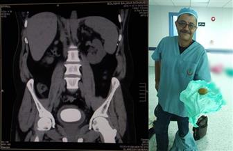 استخراج حصوة كبيرة من مثانة مريض بمستشفى العريش العام