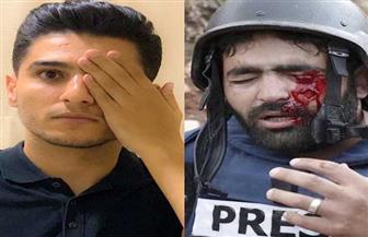 محمد عساف يخفي عينه اليسرى تضامنا مع صحفي فلسطيني أصيب برصاص إسرائيلي| صور
