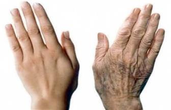 """""""بدون جراحة"""" يستعرض علاج تجاعيد اليدين"""