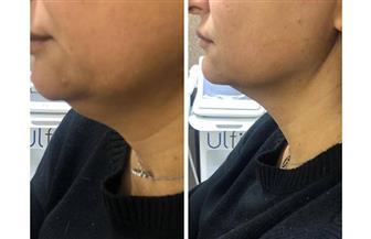 تحقق المعادلة الصعبة.. تقنية جديدة تعالج تجاعيد الوجه وترهلات الرقبة دون جراحة | صور