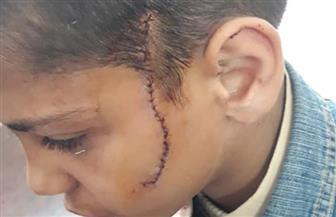 """""""والله لوريكوا بعد المدرسة"""".. تلميذ يصيب زميله بـ30 غرزة في وجهه بالمرج"""