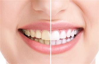 تعرف على أسباب تكون طبقات الجيرعلى الأسنان وإضرارها وطرق الوقاية