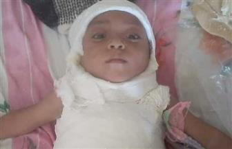 طب الأزهر ينقذ حياة طفلة من مرض نادر بين الجمجمة والفقرات | صور