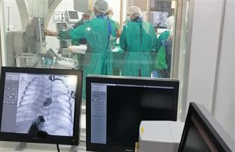 لأول مرة في مدن القناة.. إجراء أول حالة قسطرة قلبية لطفل عمره ٣ أيام ببورسعيد | صور