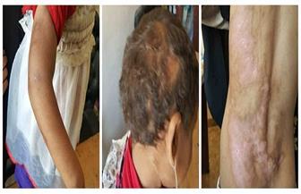 مطابقة البصمة الوراثية لطفلين من مدينة الحمام بوالدتهما بعد تزوير الأب شهادات ميلادهما