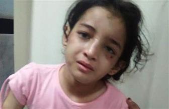 حبس أب وزوجته بتهمة تعذيب طفلة بالكي بالنار لمدة شهرين بدمياط | صور