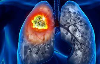استشاري أورام: نسب إصابة الرجال بسرطان الرئة أكثر من السيدات