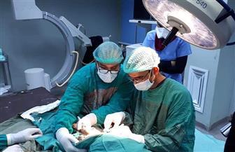 جراحة نادرة بمستشفى جامعة طنطا التعليمي تنقذ حياة مصاب بانفجار الشريان الأورطي
