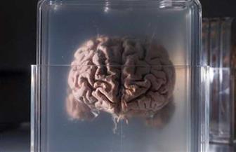 الدماغ بـ15 ألف دولار والجسم بـ36.. تجميد الأعضاء البشرية بالتبريد فى روسيا للحلم بالحياة الأبدية
