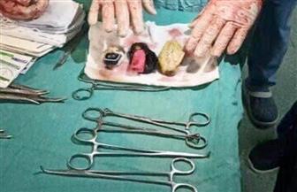 «موبايل وولاعة وجسم غريب» في معدة مريض بالمنصورة | صور
