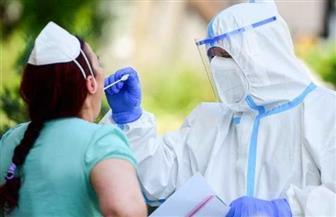 تقرير تليفزيوني: نوع من الطفح الجلدي ينذر بالإصابة بفيروس كورونا