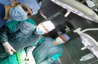 """استغرقت 8 ساعات.. نجاح جراحة نادرة لـ""""جبهة طفلة"""" في مستشفى طنطا التعليمي  صور"""