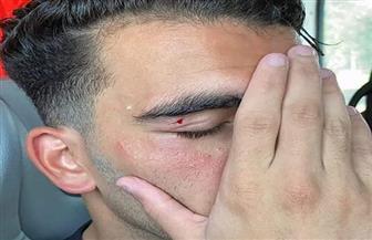 طبيب الزمالك: إصابة «زيزو» طفيفة وسيشارك في مران الغد