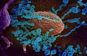 الصومال تؤكد أول إصابة بفيروس كورونا