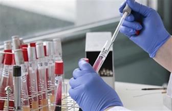 """دراسة: عقاقير علاج التهاب المفاصل آمنة لمرضى """"كورونا"""""""