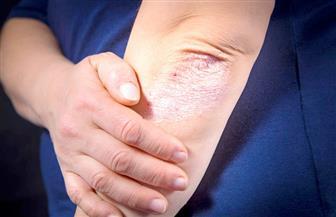 تعرف على أسباب نقص معدن الزنك المسئول عن المناعة في جسم الإنسان