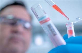 """الفلبين تسجل 615 إصابة جديدة و15 حالة وفاة بفيروس """"كورونا"""""""