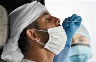 الإمارات: الإصابات بكورونا بلغت 33 ألفا و170 حالة بعد تسجيل 638 إصابة جديدة